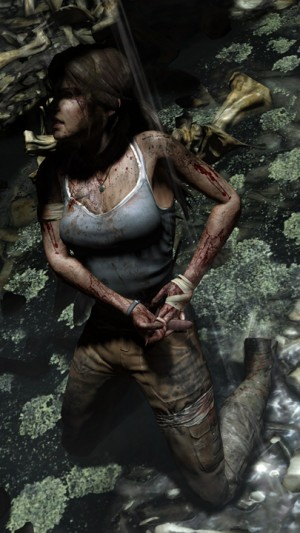 4533Lara-Injured